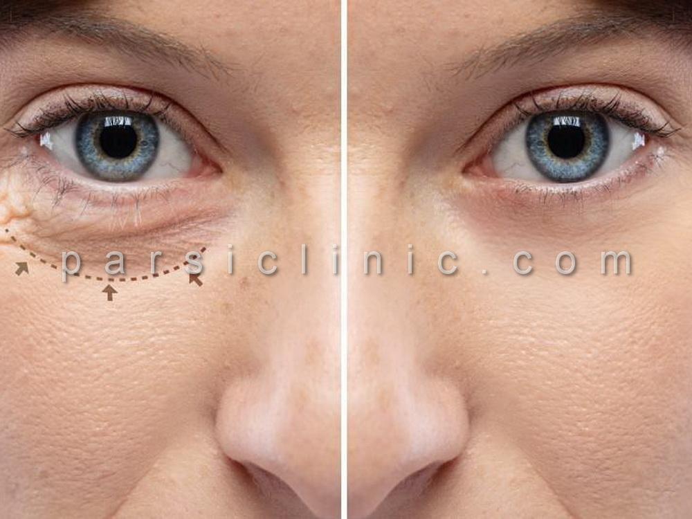 Eyelid and Eyebrow Cosmetic Surgery